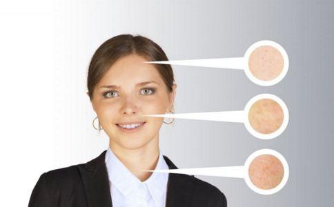 粉刺针怎么用 粉刺针有哪些注意事项 如何使用粉刺针