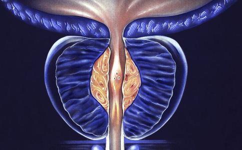 前列腺癌主要发生在哪个年龄段 前列腺癌会遗传吗 前列腺炎对男人有什么影响