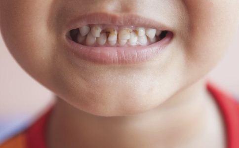 儿童应该多久做一次口腔检查比较好 儿童龋齿怎么自我检查 儿童龋齿怎么治疗