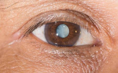 白内障会导致失明吗 怎么预防白内障 预防白内障吃什么好