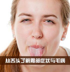 舌头出现这些情况提醒你有胃病