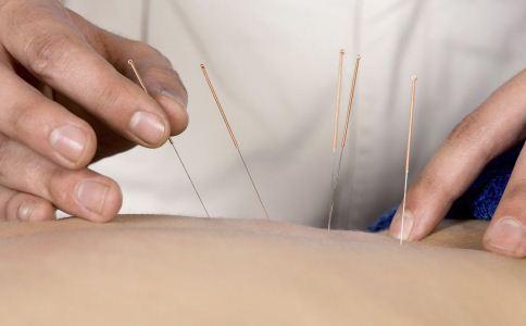 针灸减肥的方法 针灸减肥好吗 针灸减肥好不好