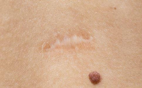 疤痕修复需要多少钱 疤痕修复的价格 伤疤修复手术多少钱