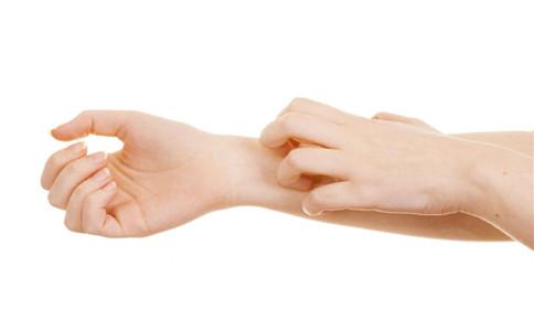疥疮有哪些症状 什么原因引起疥疮 疥疮怎么治疗