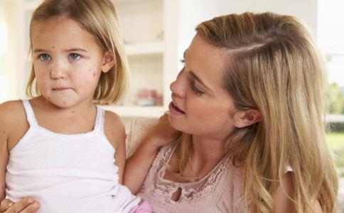 小儿肺热怎么回事 怎么预防小儿肺热 小儿肺热怎么办