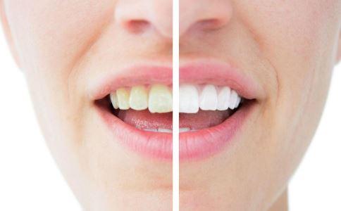牙齿冷光美白副作用 冷光美白牙齿有什么副作用 牙齿冷光美白效果能保持多久