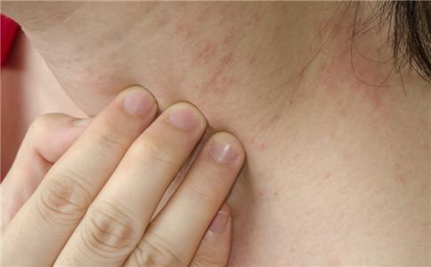 湿疹怎么护理 湿疹护理方法 湿疹有哪些症状