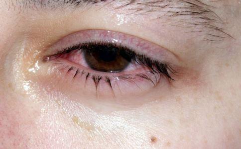 结膜炎是怎么回事 得了结膜炎怎么治疗 结膜炎的治疗方法