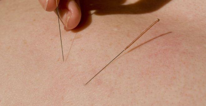 针灸可以治疗什么疾病 针灸治疗哪些疾病 哪些人不能针灸