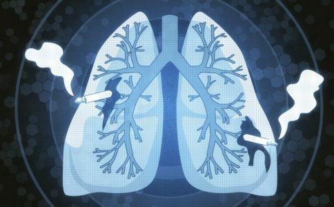 肺结核会变肺癌吗 肺癌发生的年龄是几岁 肺结核真的会变肺癌吗
