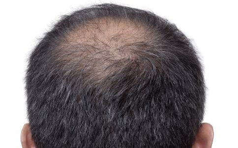 局部脱发是怎么回事 男人局部脱发怎么办 脱发严重怎么办