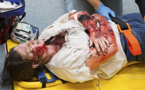电烧伤怎么办 电烧伤患者该如何护理 电烧伤怎么治