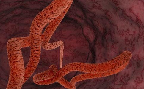 埃博拉可以治疗吗 如何预防埃博拉 预防埃博拉该怎么做