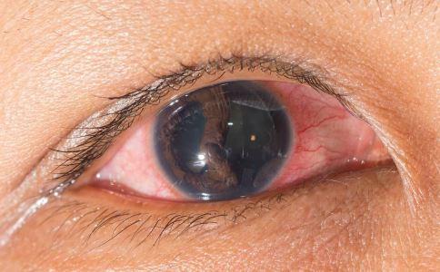 治疗红眼病的土方法 怎么治疗红眼病 治疗红眼病的偏方
