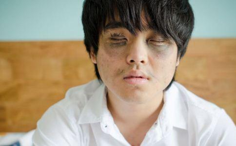 男人怎么保养眼部皮肤 怎么祛除黑眼圈 男人怎么有效祛眼袋