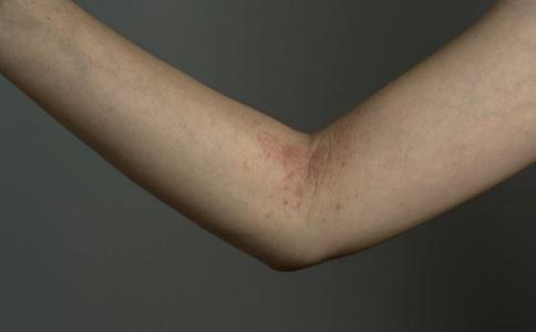皮肤过敏有哪些症状 皮肤红肿怎么办 贴药膏后皮肤过敏红肿怎么办