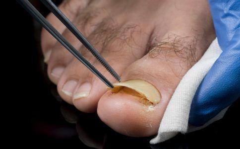 秋天脚气会减轻吗 怎么预防脚气 秋天怎么预防脚气