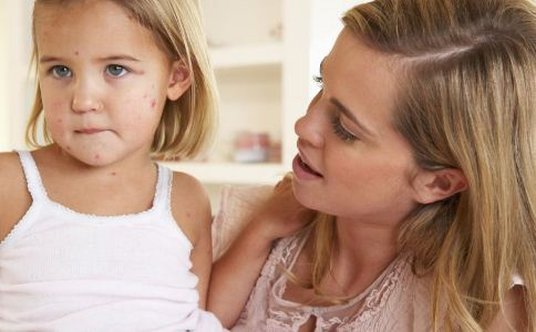 患水痘有哪些症状 怎么预防水痘 水痘该怎么预防