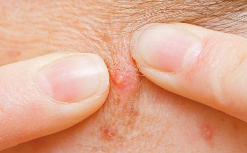 酒糟鼻的诱因有哪些 什么因素会导致酒糟鼻 酒糟鼻的症状有哪些