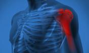 肩关节 关节炎 人体关节