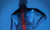 腰关节 关节炎 人体关节