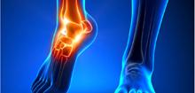 踝关节 脚踝关节图 关节炎
