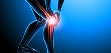 膝关节 关节炎 人体关节