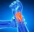 腕关节 关节炎 人体关节