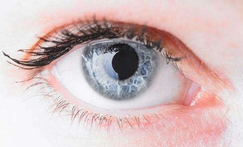 眼线虫欧洲蔓延 英国或成灾区