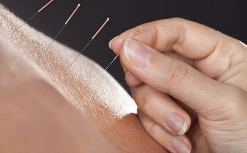 针灸减肥的方法 针灸减肥要注意什么 针灸减肥效果好吗