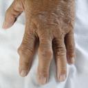 什么是类风湿性关节炎 类风湿性关节炎 关节炎