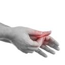 骨关节炎 骨关节炎怎么治疗 骨关节炎早期症状