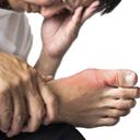 痛风性关节炎 痛风性关节炎症状 痛风性关节炎治疗方法