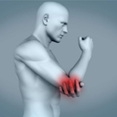 创伤性关节炎的症状与治疗 创伤性关节炎 关节炎