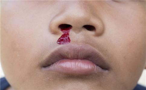 鼻出血如何止血 鼻出血止血的方法 鼻出血的原因