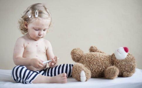 成人也会患水痘吗 成人水痘症状有哪些 怎么预防水痘