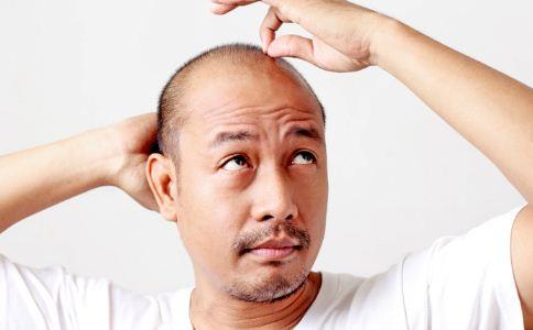 脱溢性脱发的原因有哪些 怎么预防脱溢性脱发 怎么防止脱发呢
