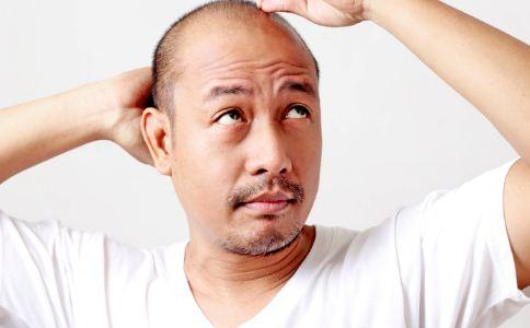 头癣该怎么治疗 怎么预防头癣 头癣的防止措施有哪些