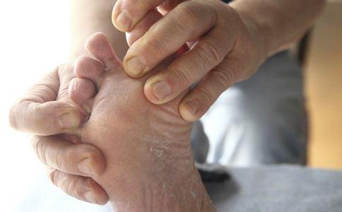 脚气反复发作难治愈怎么办 怎么有效治疗脚气 治疗脚气的偏方有哪些