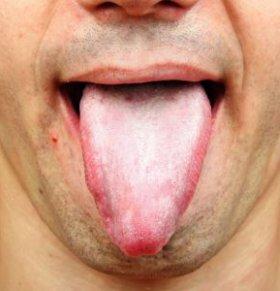 怎么从舌头看健康 舌诊的原理 舌诊要注意什么