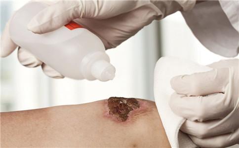 外伤化脓怎么办 外伤化脓怎么处理 外伤化脓的原因