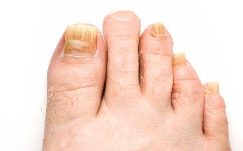 灰指甲的早期症状有哪些 怎么预防灰指甲 灰指甲是脚气吗