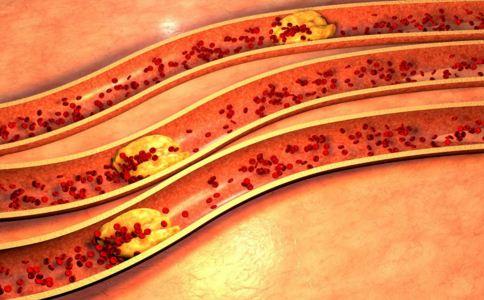 动脉硬化有什么表现 动脉硬化有什么症状 动脉硬化有哪些征兆