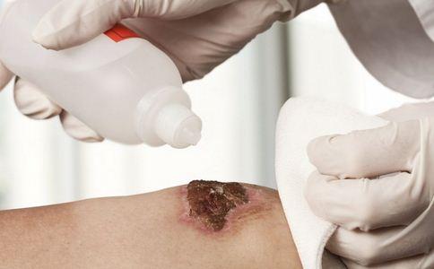 新款医疗胶水 外伤伤口如何处理 外伤伤口的处理方法