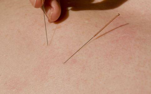 针灸可以减肥吗 针灸减肥效果好吗 怎么才能瘦下去