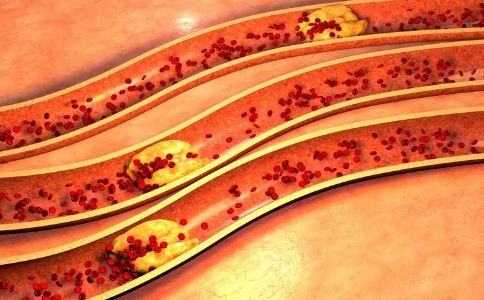 动脉硬化的原因有哪些 动脉硬化什么原因引起的 动脉硬化有什么症状