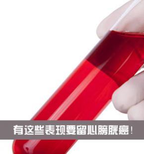 男子忽视血尿致膀胱癌晚期 这些表现要留心
