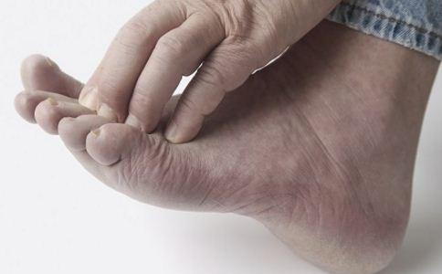灰指甲分为哪几种 灰指甲患者饮食要注意什么 灰指甲患者要多补充什么