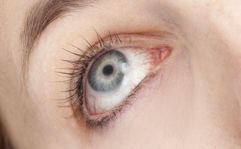 眼睑炎有哪些类型 眼睑炎怎么治疗 眼睑炎的治疗方法