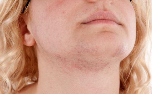 接触性皮炎有哪些分类 怎么治疗接触性皮炎 接触性皮炎怎么用药